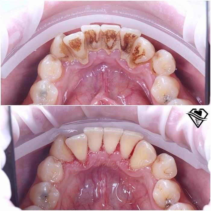 Стоматология Самара Мед ультразвуковая чистка зубов результат работы
