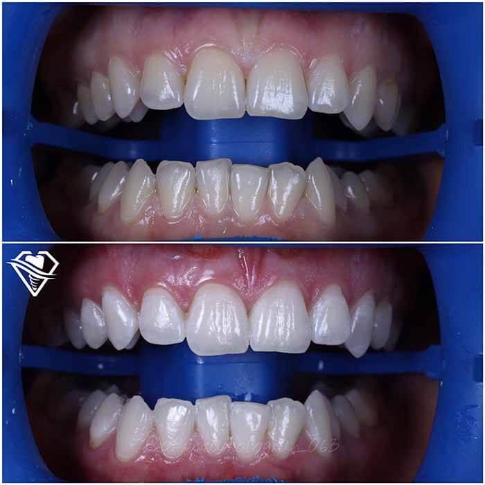 Стоматология Самара Мед отбеливание ZOOM white speed и ультразвуковая чистка зубов результат работы