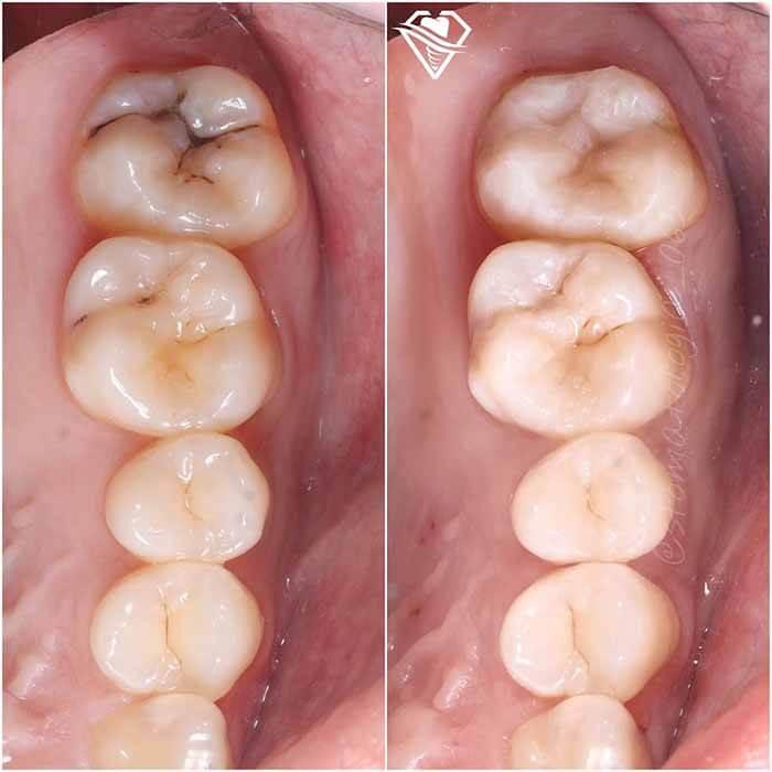 Стоматология Самара Мед лечение глубокого кариеса результат работы