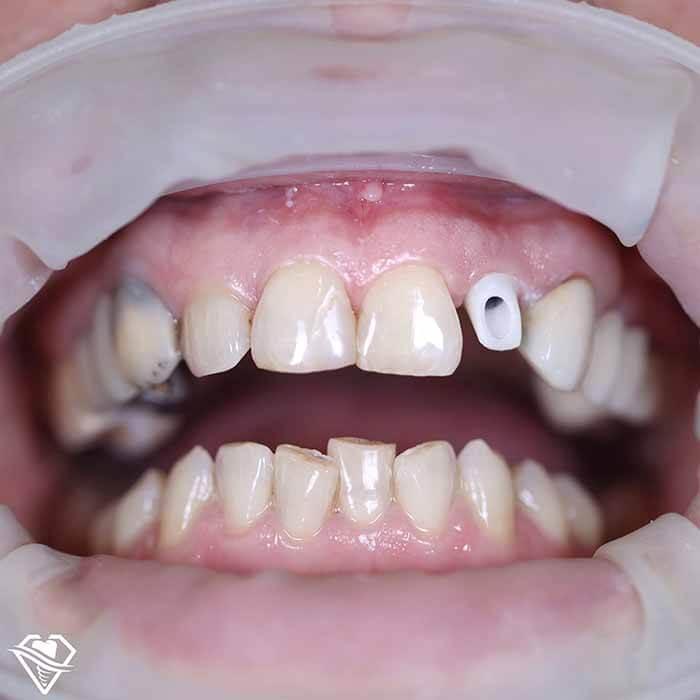 Стоматология Самара Мед имплантация зубов результат работы