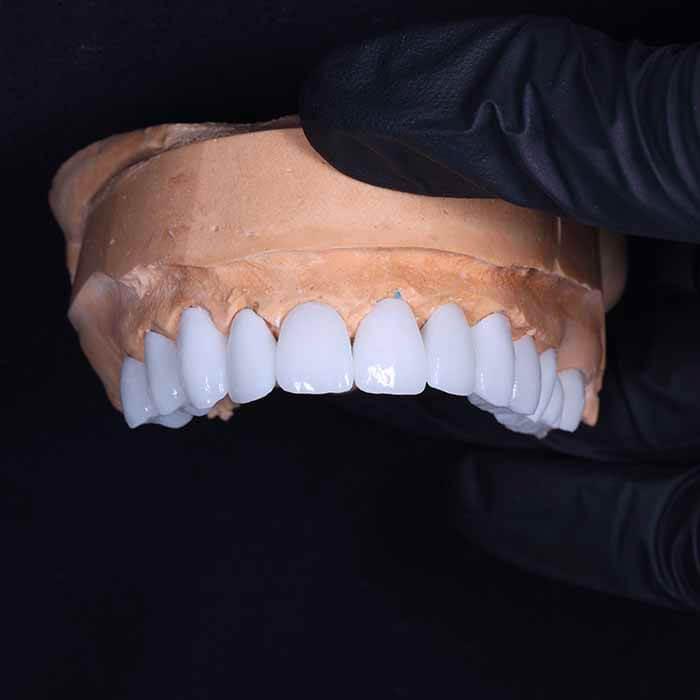 Стоматология Самара Мед постановка коронок результат работы