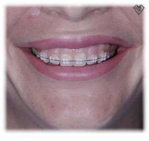 Брекеты сапфировые за 95.000 рублей в стоматологии Самара Мед, фото