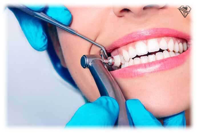 Ультразвуковая чистка зубов от 3.000 рублей в стоматологии Самара Мед, фото