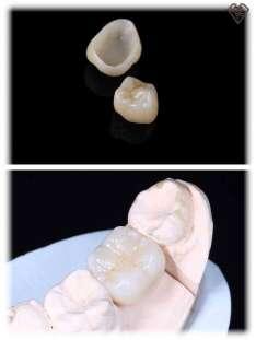Циркониевая коронка под ключ за 8.500 рублей в стоматологии Самара Мед, фото