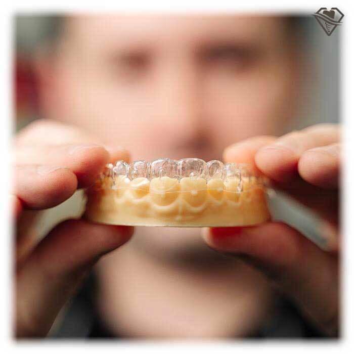 Элайнеры для зубов от 7.000 рублей в стоматологии Самара Мед