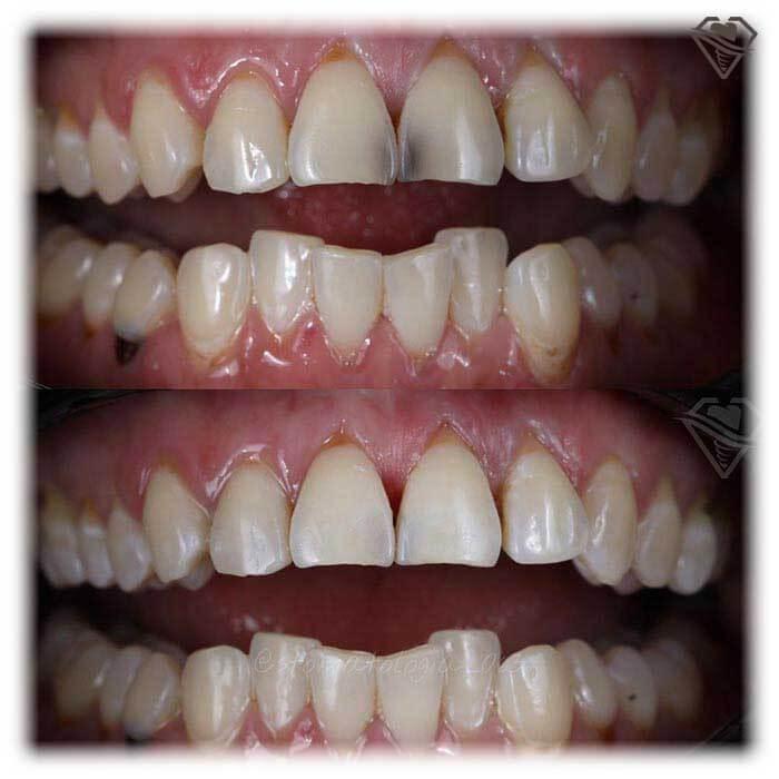 Эстетическая реставрация зубов от 2.500 рублей в стоматологии Самара Мед, фото