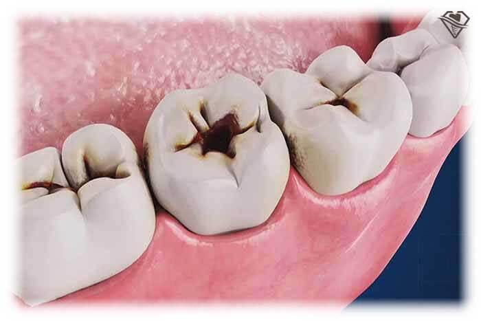 Лечение кариеса от 1.800 рублей в стоматологии Самара Мед, фото