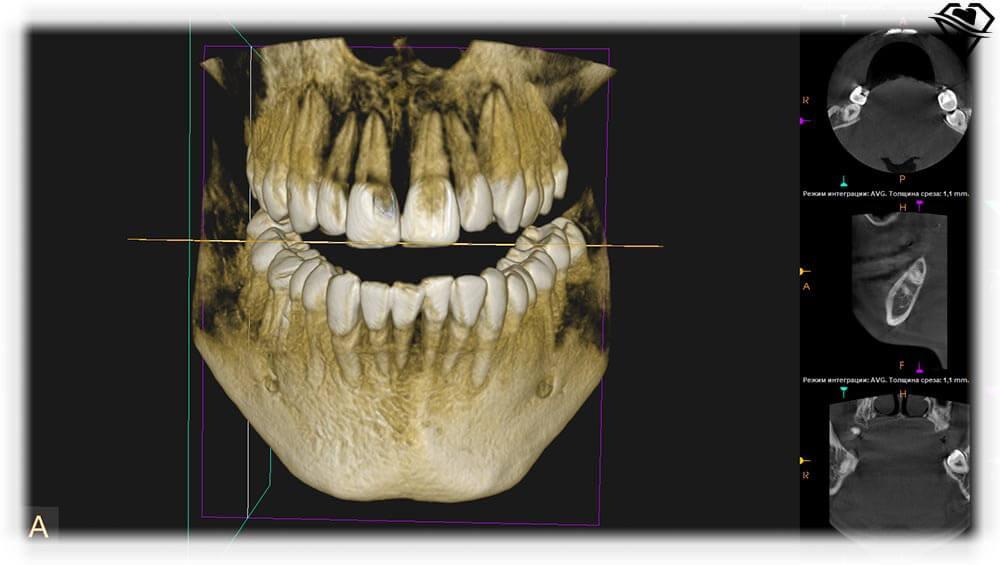 Компьютерная томография челюсти в стоматологии Самара Мед фото