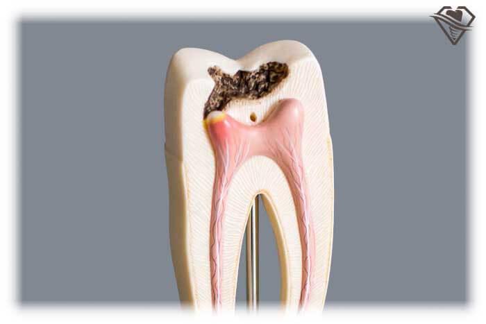 Лечение пульпита от 2.100 рублей в стоматологии Самара Мед, фото