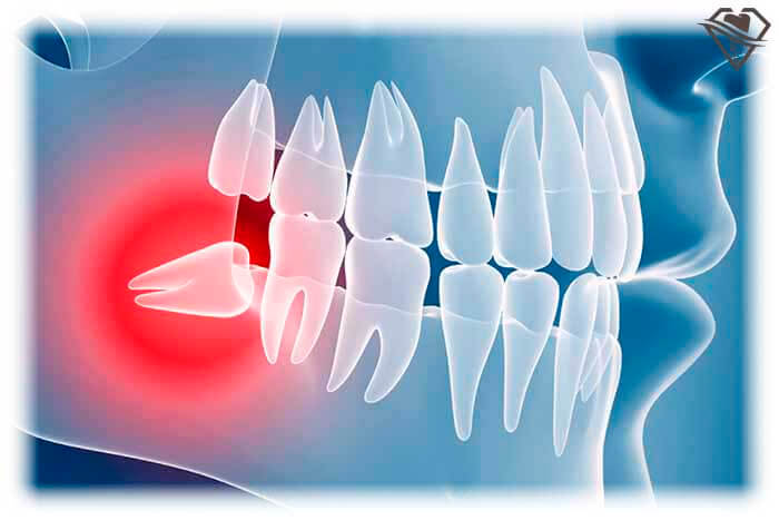 Удаление зуба мудрости от 2.500 рублей в стоматологии Самара Мед, фото
